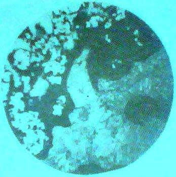 藻团块白云岩,(图片3) 藻粘结结构,他形,纤状白云石分布于团块间