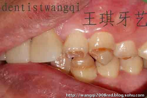 成功的瓷贴面修复来自于精心的牙体预备 高清图片