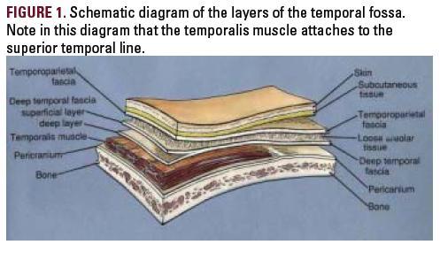 传动轴颞部结构图片