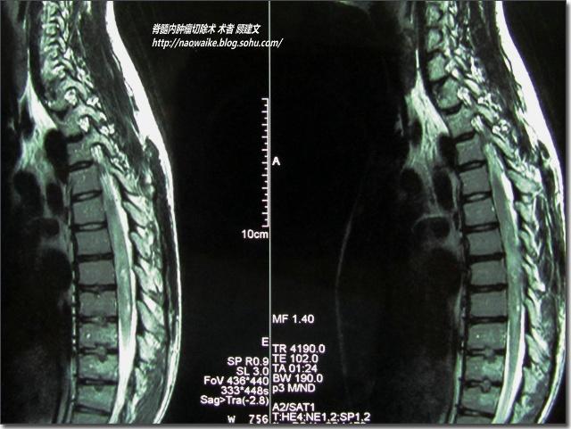 1 手术操作技术   脊髓髓内肿瘤手术技术最为重要的是,需在超声引导下进行定位,离断肿瘤的主要血供后,严格沿正确的界面分离、切除肿瘤。具体手术方法随不同的病理类型而异:胶质瘤多位于脊髓中央偏后,切瘤时,沿脊髓后正中切开软脊膜,显露瘤体,向两侧稍作分离后,用无损伤缝针缝吊软脊膜;牵开两侧后索,作肿瘤囊内切除,在瘤与空洞腔交界处,先游离出肿瘤的一极,再自上而下或自下而上地分离腹侧肿瘤,直至全肿瘤切除。若肿瘤无继发空洞形成,或因两端肿瘤较细、较深在,且空洞腔壁较厚、难于分清瘤髓界面时,需在肿瘤中部分离、切
